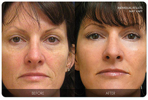 Look Younger With Krasa Cream!